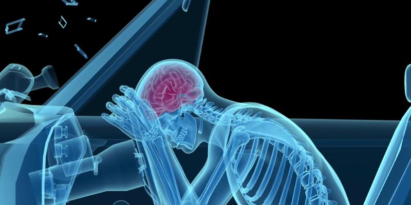 Personal Injury - brain trauma